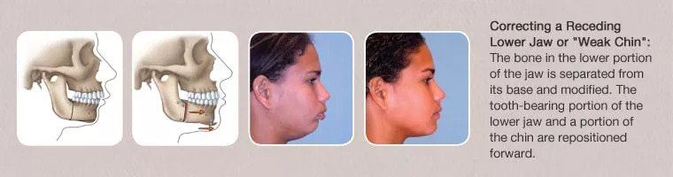 correcting a protruding lower jaw diagram